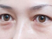 苏州美莱祛眼袋效果怎么样
