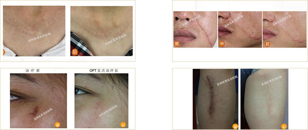 疤痕修复案例