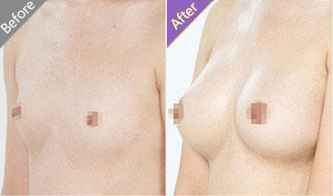 隆胸前后对比