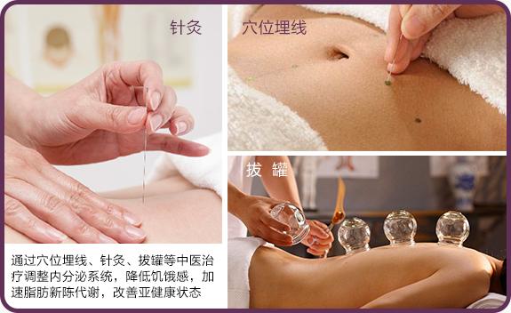 中医疗法|穴位埋线、针灸、 拔罐